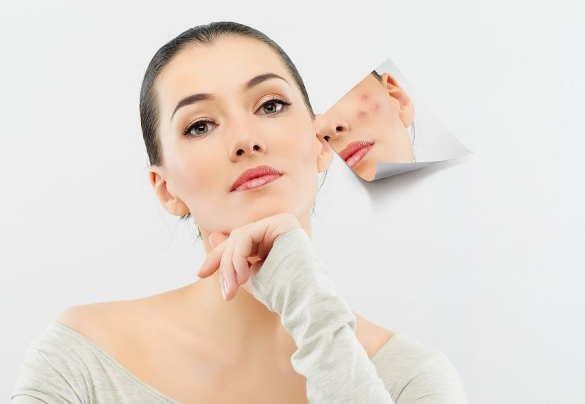 Best dermaroller for acne scars - Surface Paris